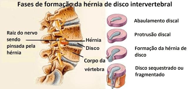 bico de papagaio cervical sintomas